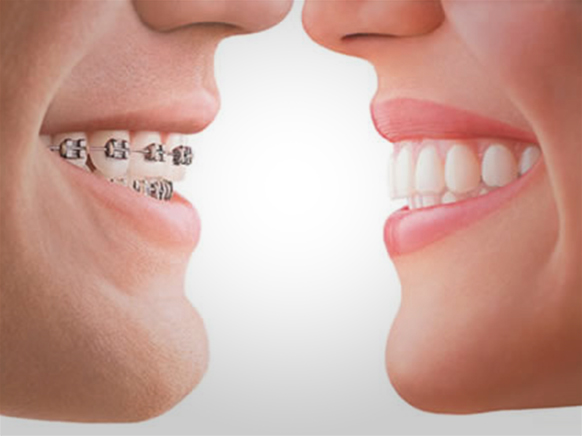 Invisalign Clear Braces louisville ky